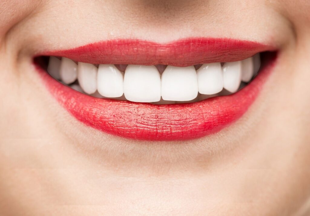 after-whitening